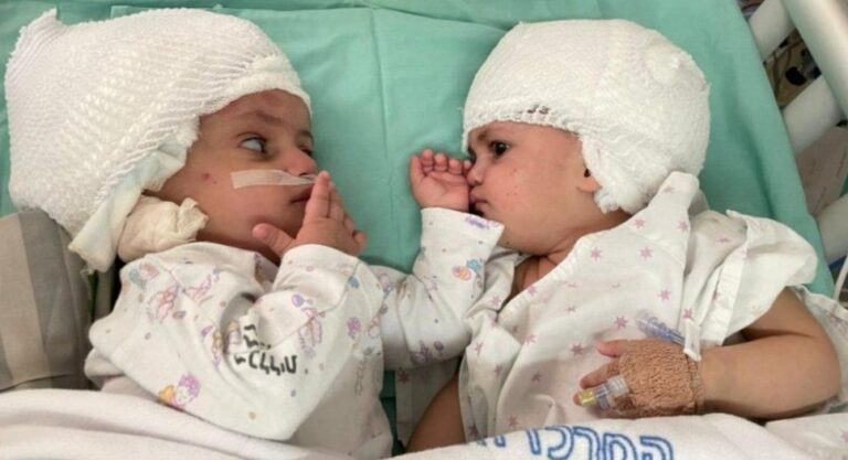 Middle East twins joined at the head separated after rare surgery