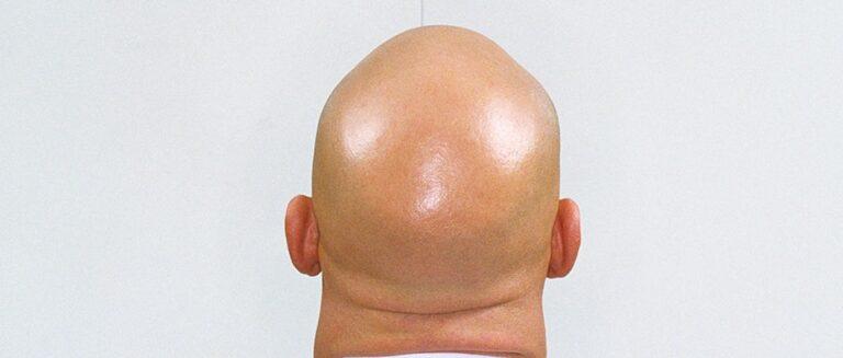 Saudi woman wants to divorce her bald husband